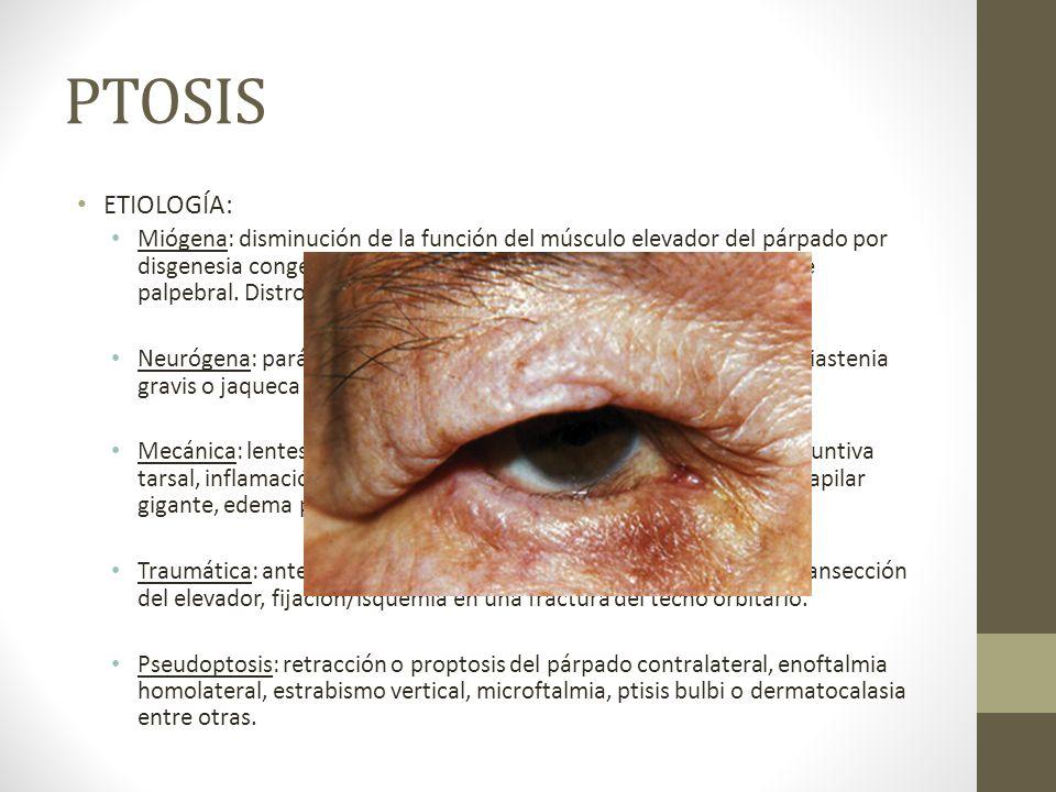 PTOSIS ETIOLOGÍA: Miógena: disminución de la función del músculo elevador del párpado por disgenesia congénita, por debilidad senil o por ausencia del