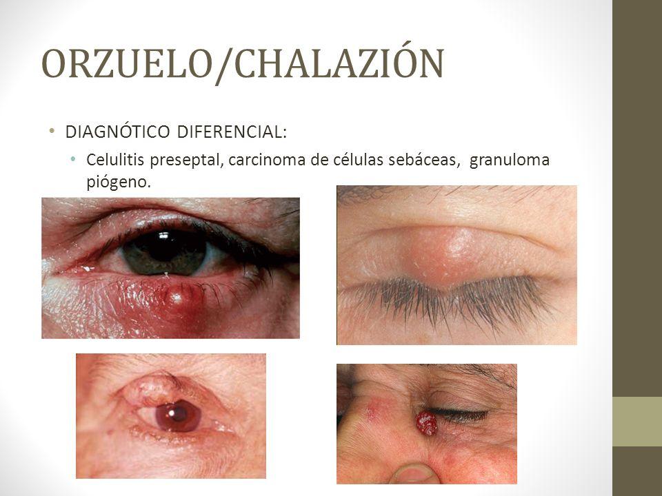 ORZUELO/CHALAZIÓN DIAGNÓTICO DIFERENCIAL: Celulitis preseptal, carcinoma de células sebáceas, granuloma piógeno.