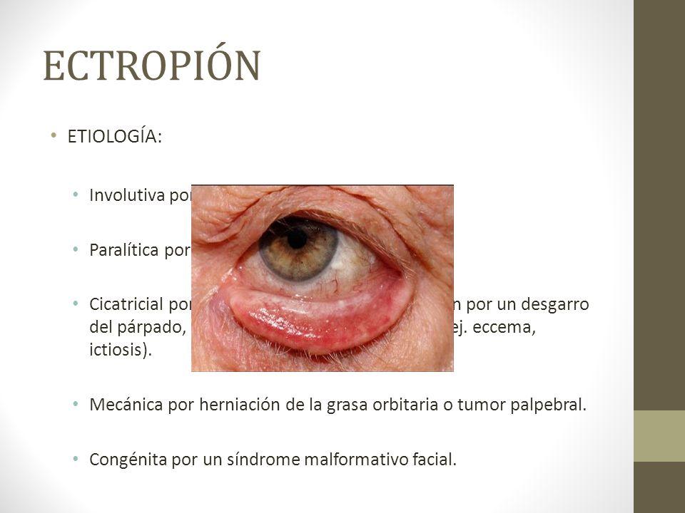 ECTROPIÓN ETIOLOGÍA: Involutiva por envejecimiento. Paralítica por una parálisis del VII par. Cicatricial por quemaduras, cirugía, cicatrización por u