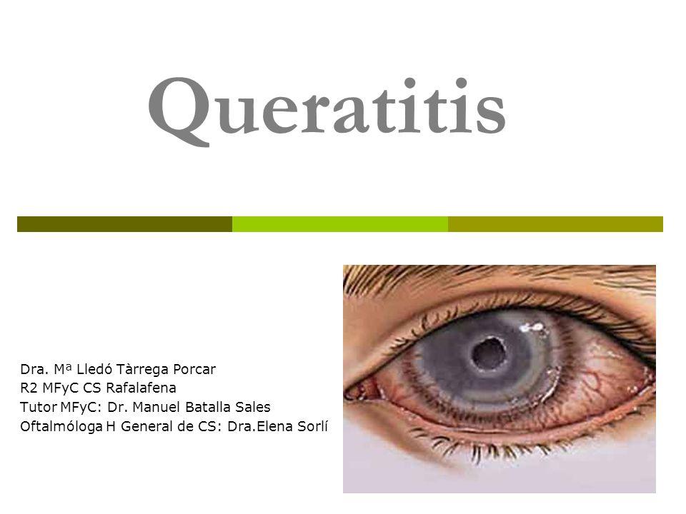 INTRODUCCIÓN - Definición: La queratitis es una inflamación que afecta a la córnea.