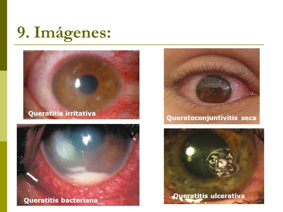 9. Imágenes: Queratitis irritativa Queratoconjuntivitis seca Queratitis bacteriana Queratitis ulcerativa