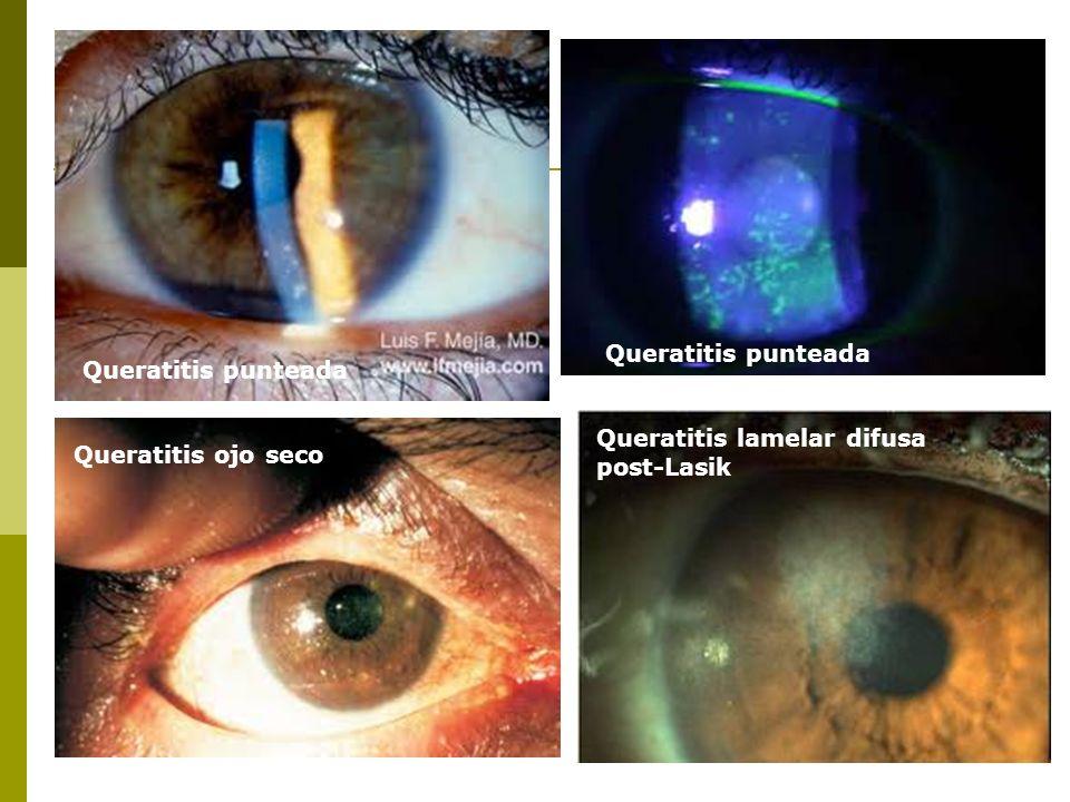 Queratitis punteada Queratitis ojo seco Queratitis lamelar difusa post-Lasik