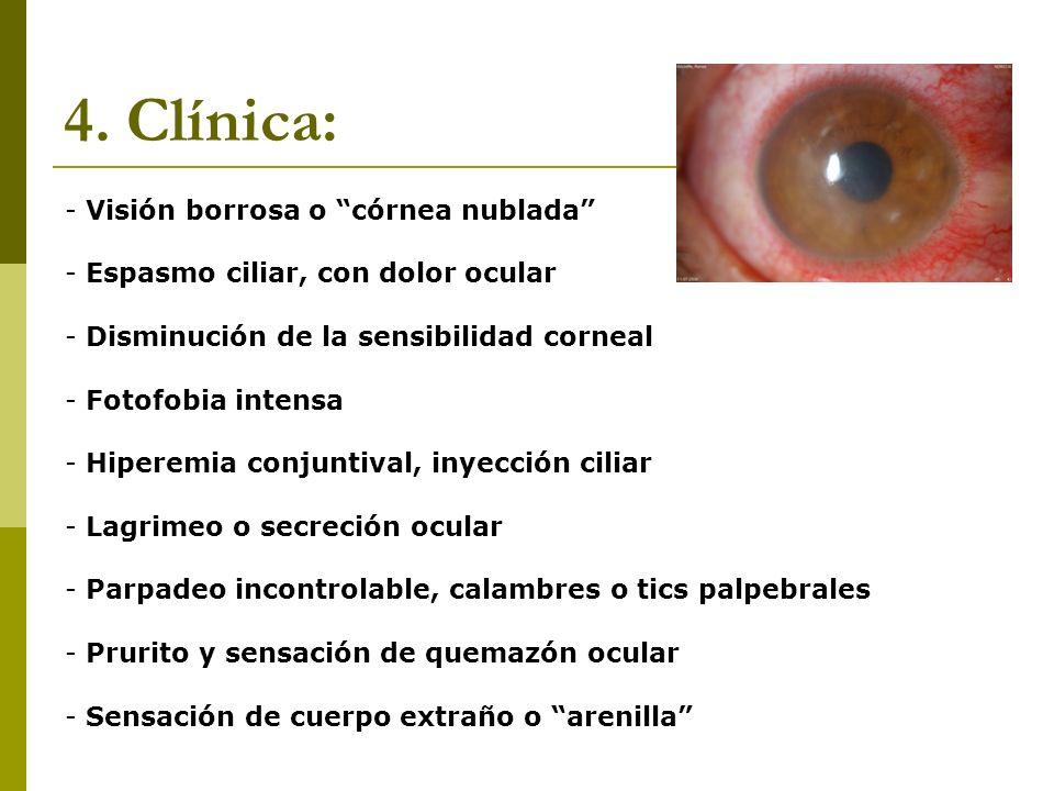 4.1 Clínica: - Daño extenso o crónico: Queratitis avanzada/ulcerativa: Ante una queratitis muy extensa, se pueden producir opacidades corneales que dificulten la visión, por cicatrices corneales de repetición: LEUCOMA CORNEAL.