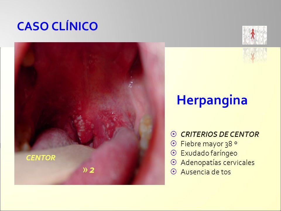 CASO CLÍNICO Herpangina CRITERIOS DE CENTOR Fiebre mayor 38 º Exudado faríngeo Adenopatías cervicales Ausencia de tos CENTOR » 2