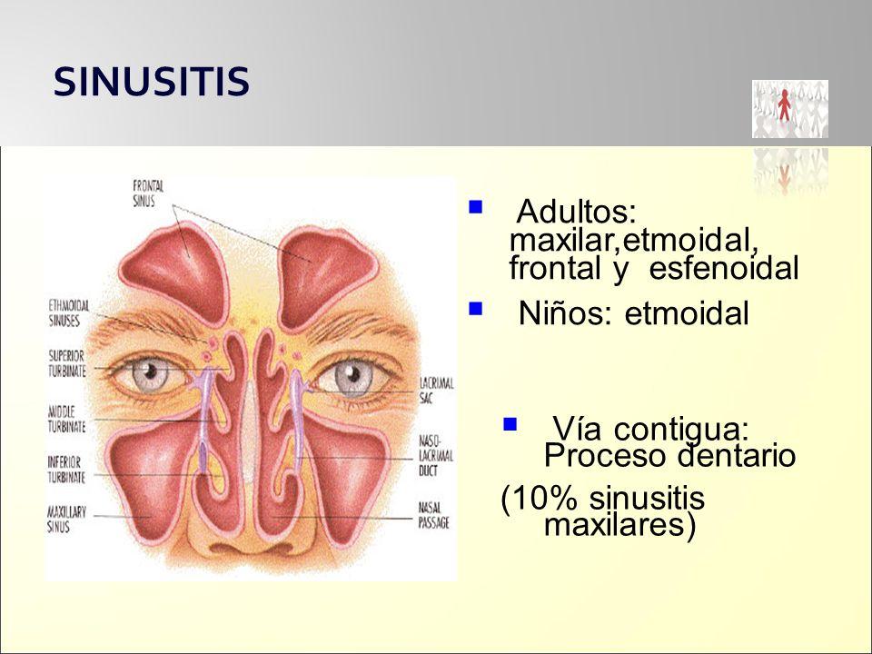 SINUSITIS Adultos: maxilar,etmoidal, frontal y esfenoidal Niños: etmoidal Vía contigua: Proceso dentario (10% sinusitis maxilares)