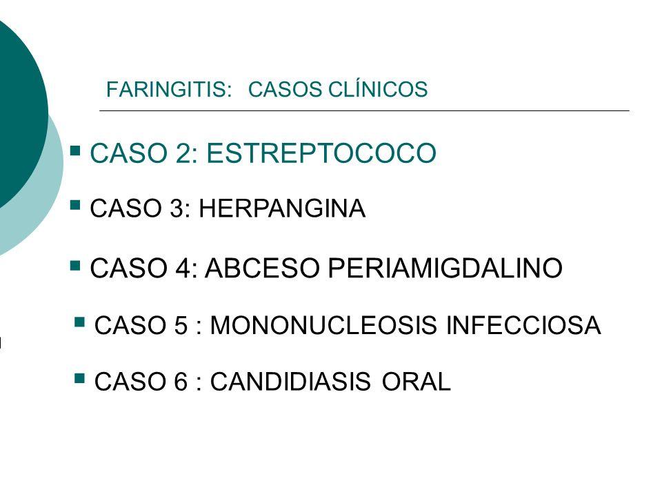 FARINGITIS: CASOS CLÍNICOS CASO 2: ESTREPTOCOCO CASO 3: HERPANGINA CASO 4: ABCESO PERIAMIGDALINO CASO 5 : MONONUCLEOSIS INFECCIOSA CASO 6 : CANDIDIASI