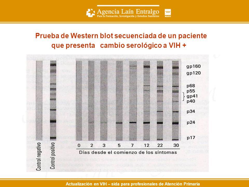 Prueba de Western blot secuenciada de un paciente que presenta cambio serológico a VIH +