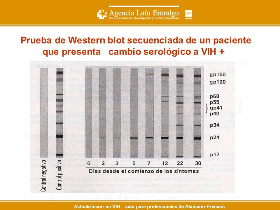 Actualización en VIH – sida para profesionales de Atención Primaria Prueba de Western blot secuenciada de un paciente que presenta cambio serológico a VIH +