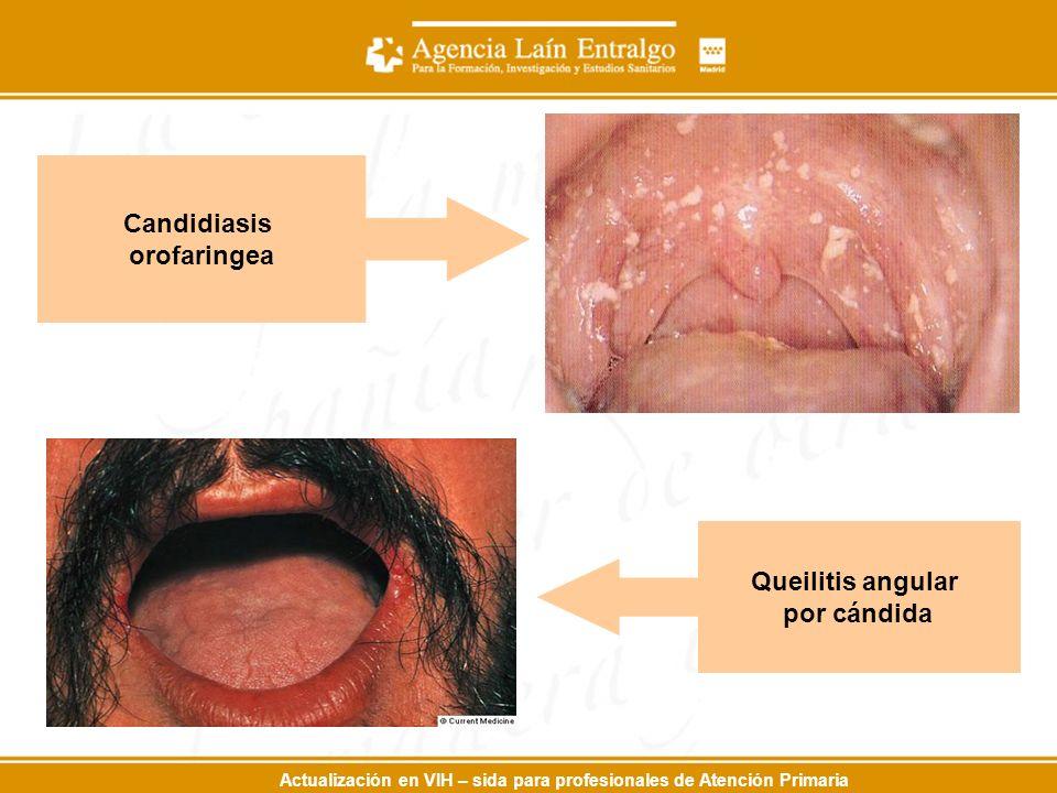 Actualización en VIH – sida para profesionales de Atención Primaria Candidiasis orofaringea Queilitis angular por cándida