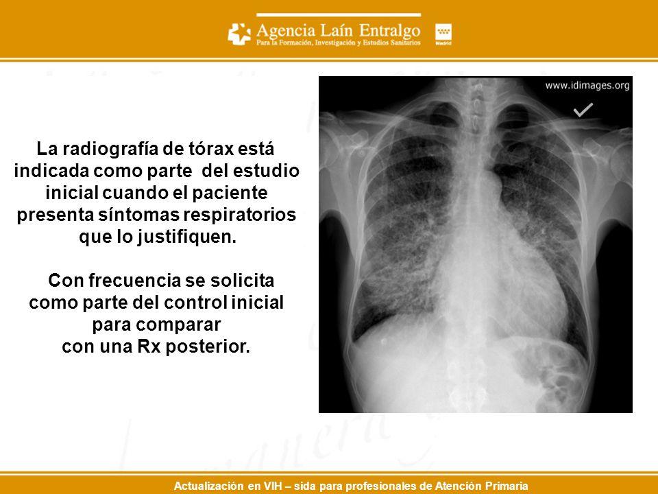Actualización en VIH – sida para profesionales de Atención Primaria La radiografía de tórax está indicada como parte del estudio inicial cuando el paciente presenta síntomas respiratorios que lo justifiquen.