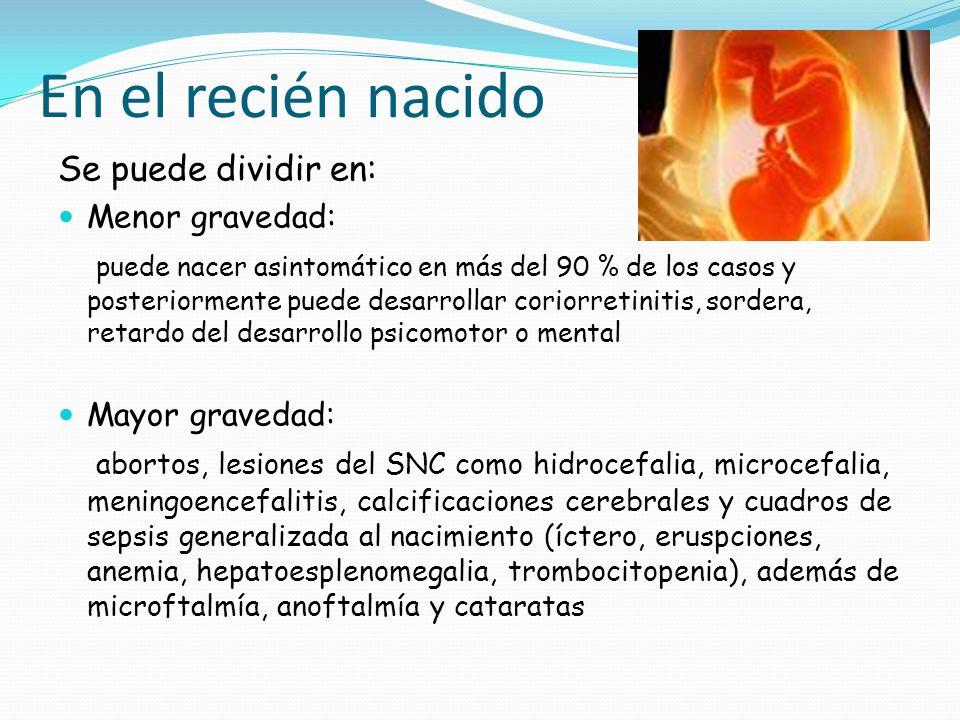 En el recién nacido Se puede dividir en: Menor gravedad: puede nacer asintomático en más del 90 % de los casos y posteriormente puede desarrollar cori
