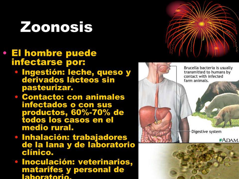 Zoonosis El hombre puede infectarse por: Ingestión: leche, queso y derivados lácteos sin pasteurizar. Contacto: con animales infectados o con sus prod