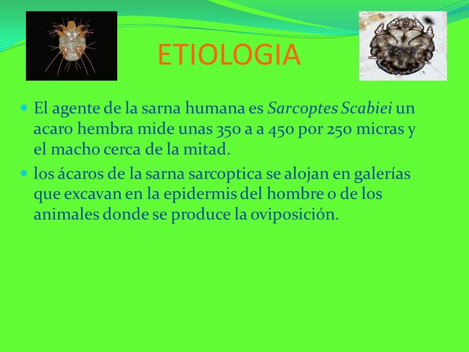 ETIOLOGIA El agente de la sarna humana es Sarcoptes Scabiei un acaro hembra mide unas 350 a a 450 por 250 micras y el macho cerca de la mitad. los áca