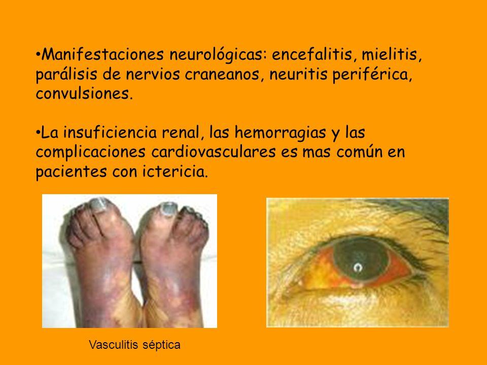Manifestaciones neurológicas: encefalitis, mielitis, parálisis de nervios craneanos, neuritis periférica, convulsiones. La insuficiencia renal, las he