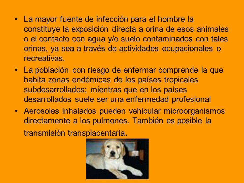 La mayor fuente de infección para el hombre la constituye la exposición directa a orina de esos animales o el contacto con agua y/o suelo contaminados