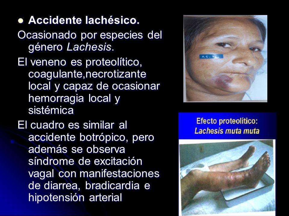 Accidente lachésico. Accidente lachésico. Ocasionado por especies del género Lachesis. El veneno es proteolítico, coagulante,necrotizante local y capa