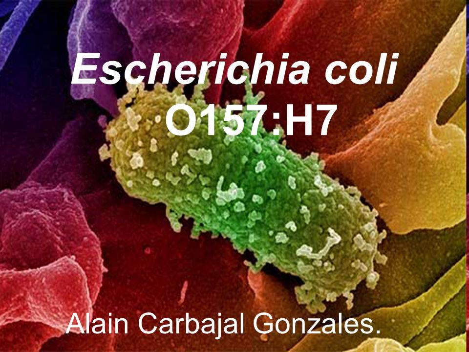 Escherichia coli O157:H7 Alain Carbajal Gonzales.