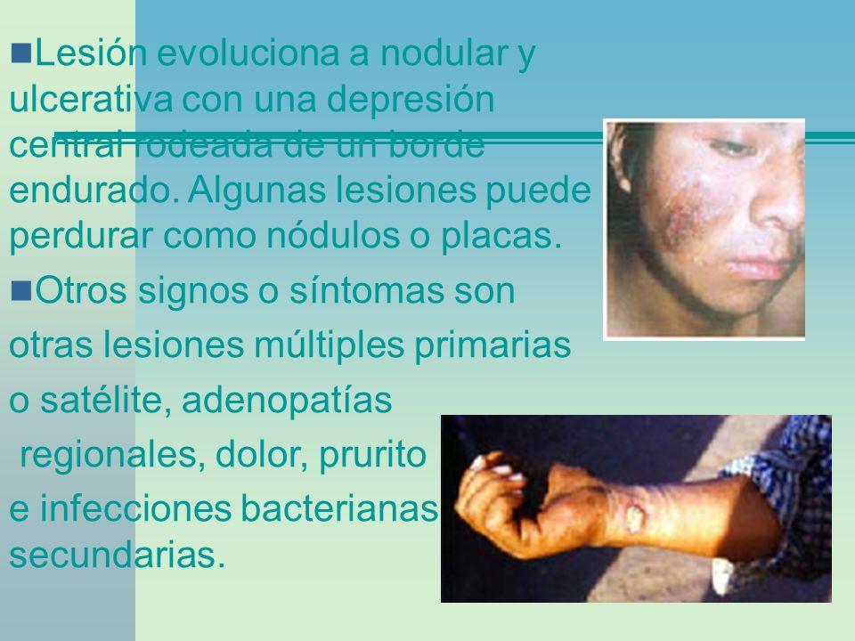 Lesión evoluciona a nodular y ulcerativa con una depresión central rodeada de un borde endurado. Algunas lesiones puede perdurar como nódulos o placas