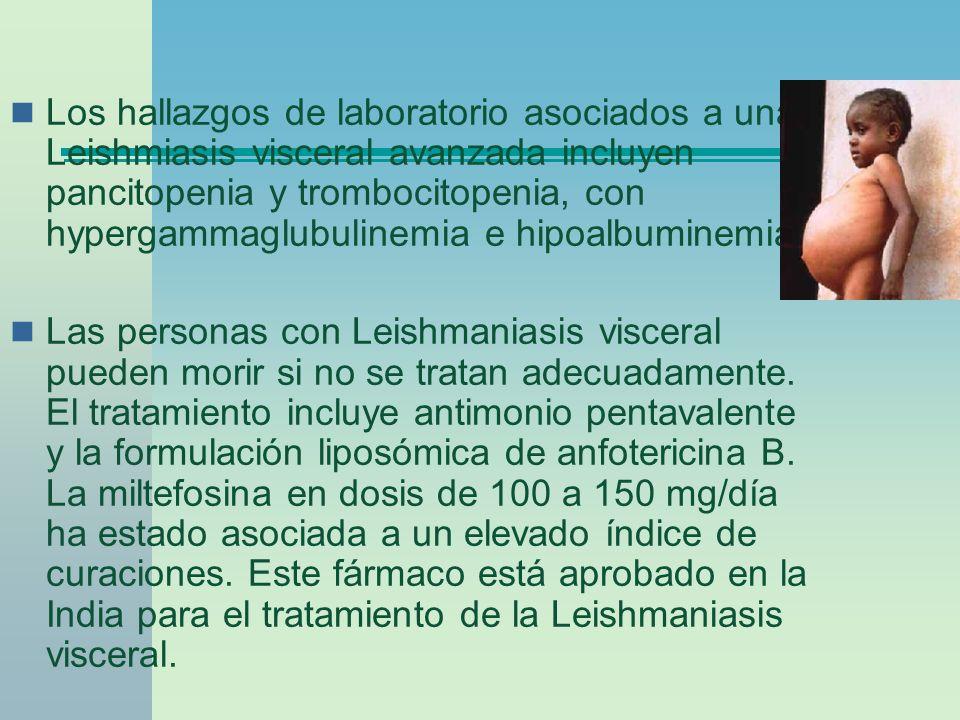 Los hallazgos de laboratorio asociados a una Leishmiasis visceral avanzada incluyen pancitopenia y trombocitopenia, con hypergammaglubulinemia e hipoa