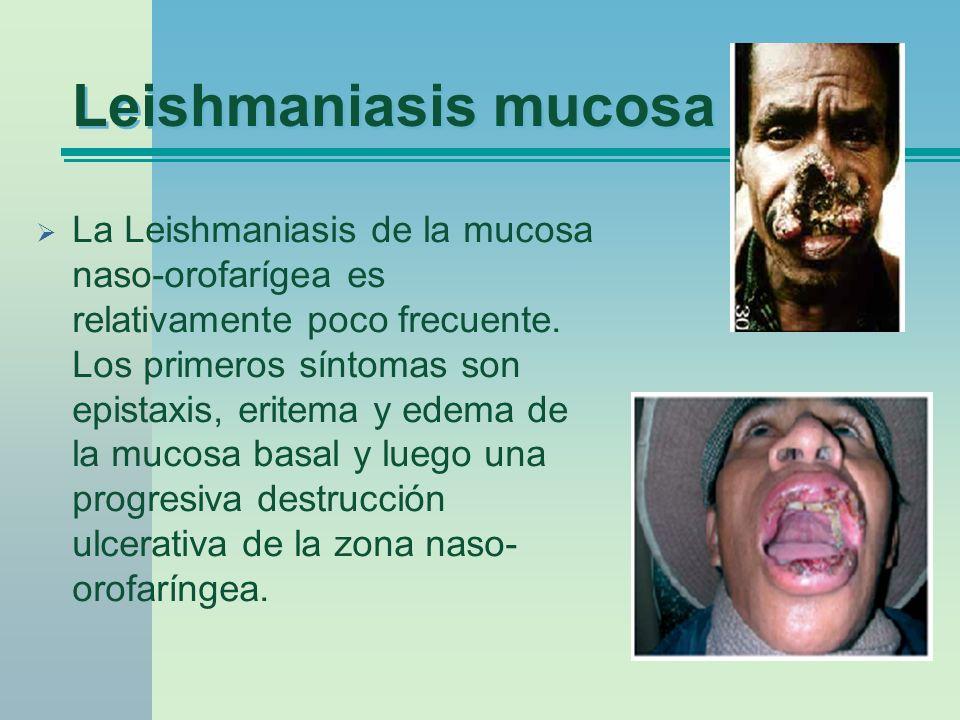 Leishmaniasis mucosa La Leishmaniasis de la mucosa naso-orofarígea es relativamente poco frecuente. Los primeros síntomas son epistaxis, eritema y ede