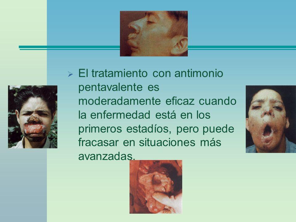 El tratamiento con antimonio pentavalente es moderadamente eficaz cuando la enfermedad está en los primeros estadíos, pero puede fracasar en situacion