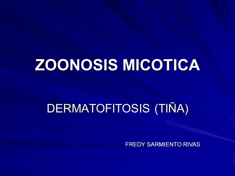 ZOONOSIS MICOTICA DERMATOFITOSIS (TIÑA) FREDY SARMIENTO RIVAS