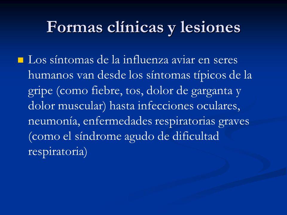 Formas clínicas y lesiones Los síntomas de la influenza aviar en seres humanos van desde los síntomas típicos de la gripe (como fiebre, tos, dolor de