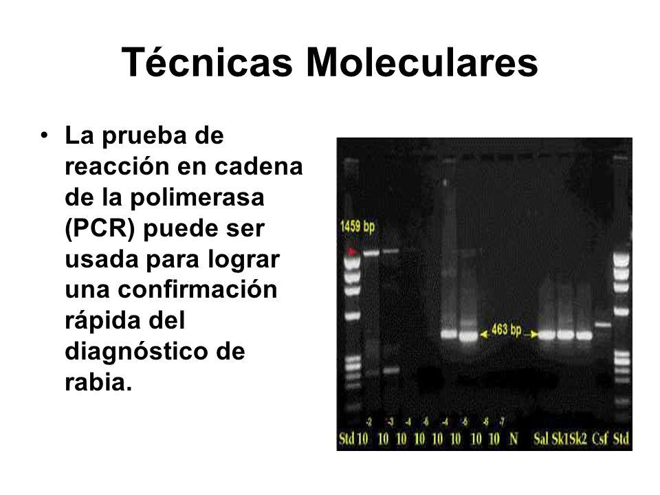 Técnicas Moleculares La prueba de reacción en cadena de la polimerasa (PCR) puede ser usada para lograr una confirmación rápida del diagnóstico de rab