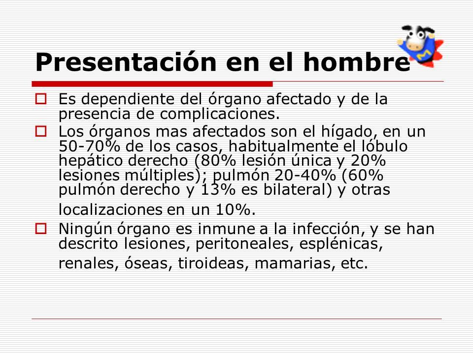 Presentación en el hombre Es dependiente del órgano afectado y de la presencia de complicaciones. Los órganos mas afectados son el hígado, en un 50-70