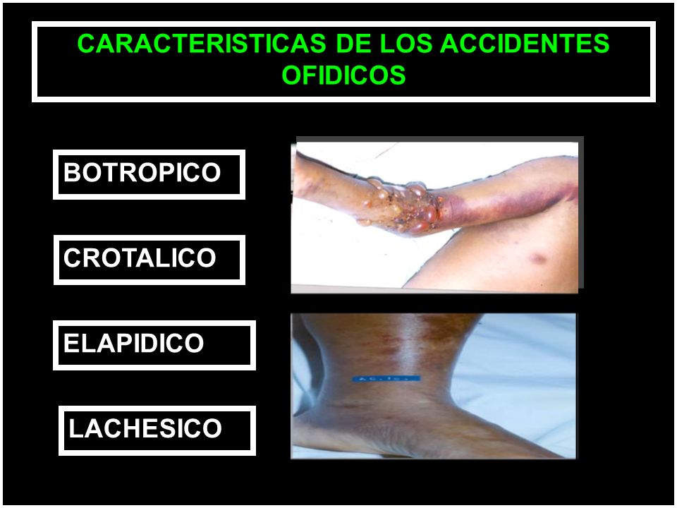 CARACTERISTICAS DE LOS ACCIDENTES OFIDICOS BOTROPICO CROTALICO ELAPIDICO LACHESICO