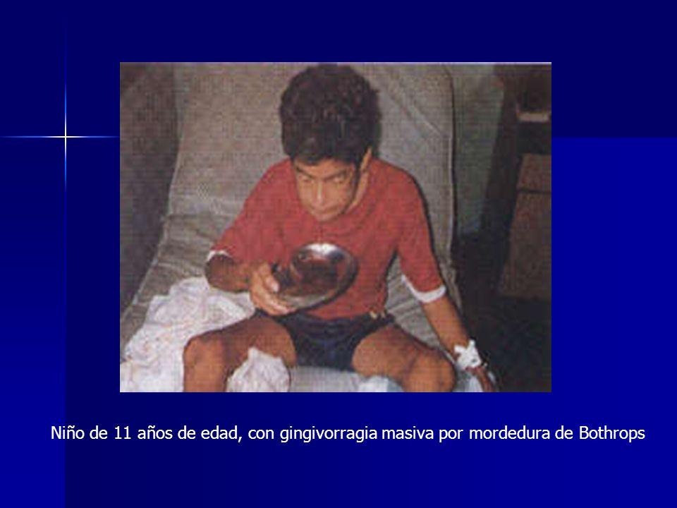 Niño de 11 años de edad, con gingivorragia masiva por mordedura de Bothrops