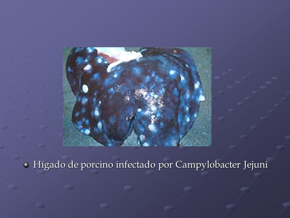 Hígado de porcino infectado por Campylobacter Jejuni