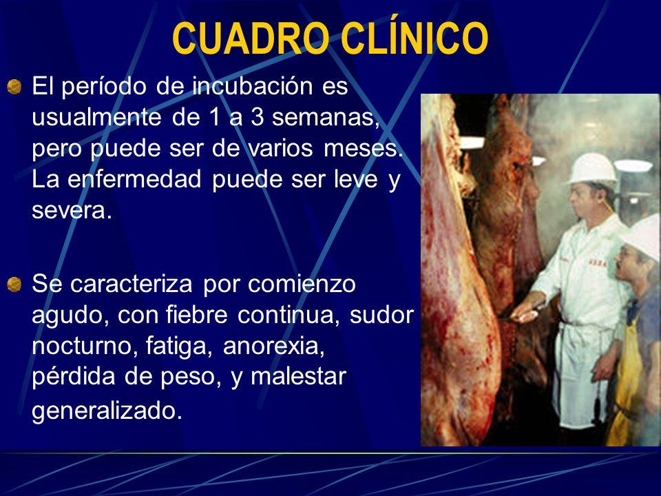 CUADRO CLÍNICO El período de incubación es usualmente de 1 a 3 semanas, pero puede ser de varios meses. La enfermedad puede ser leve y severa. Se cara