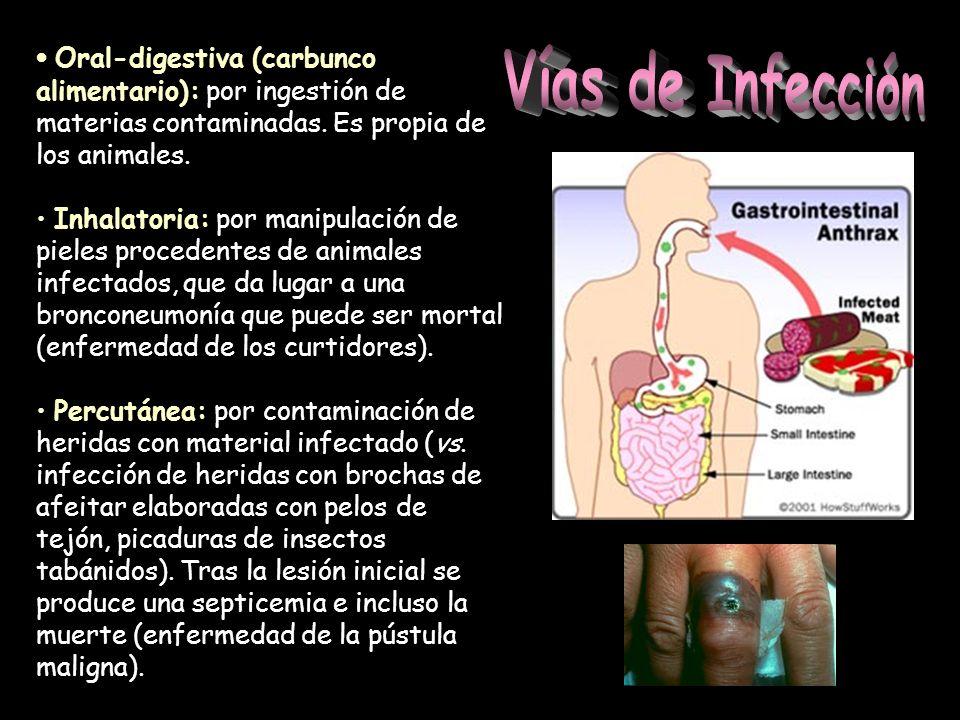 Oral-digestiva (carbunco alimentario): por ingestión de materias contaminadas. Es propia de los animales. Inhalatoria: por manipulación de pieles proc