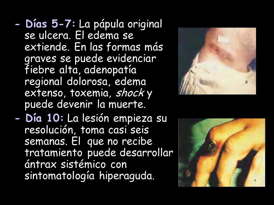 - Días 5-7: La pápula original se ulcera. El edema se extiende. En las formas más graves se puede evidenciar fiebre alta, adenopatía regional dolorosa