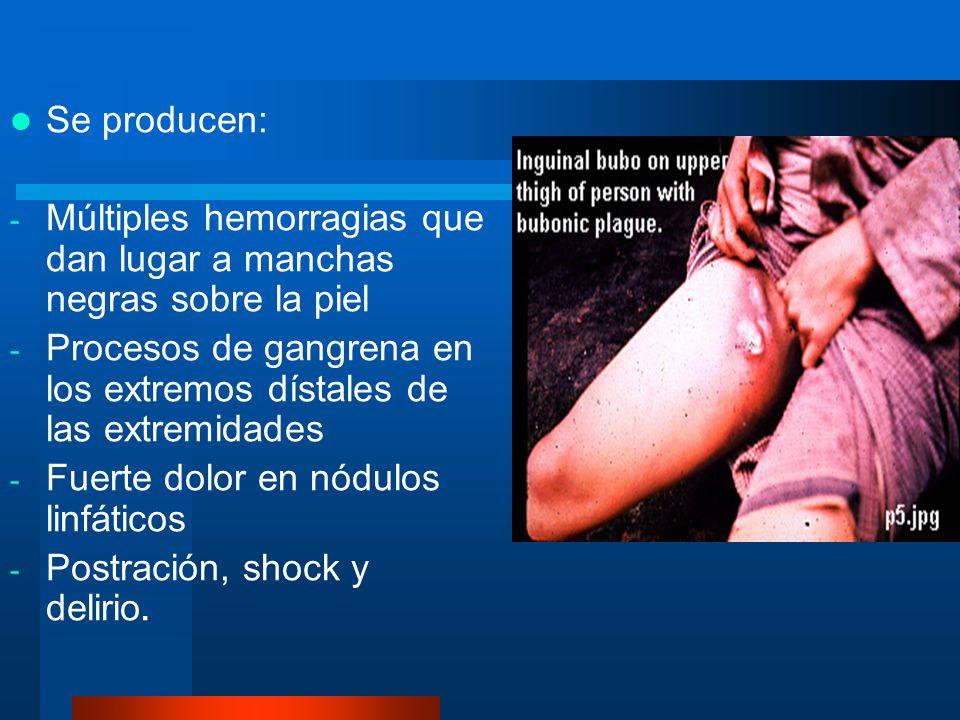 Se producen: - Múltiples hemorragias que dan lugar a manchas negras sobre la piel - Procesos de gangrena en los extremos dístales de las extremidades