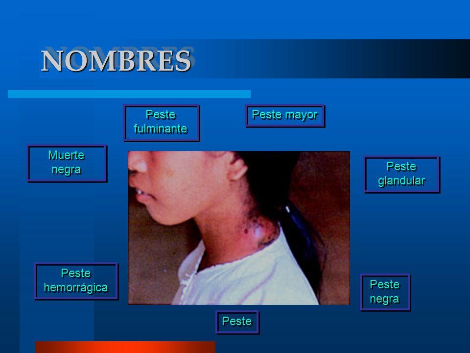 NOMBRESNOMBRES Muerte negra Peste Peste fulminante Peste mayor Peste hemorrágica Peste glandular Peste negra