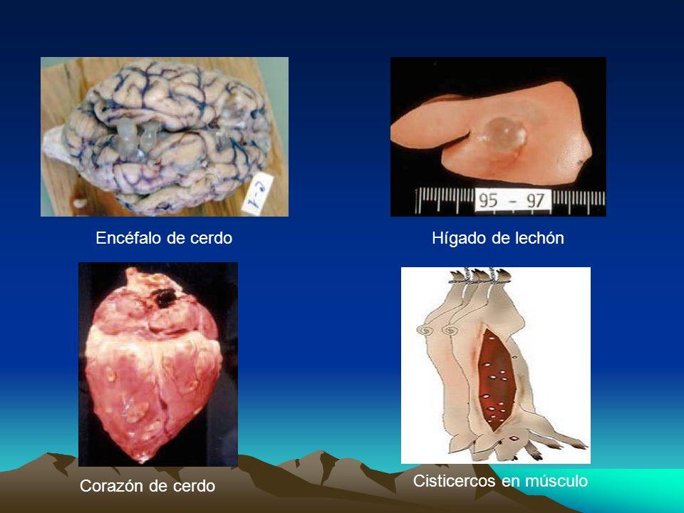 Encéfalo de cerdoHígado de lechón Corazón de cerdo Cisticercos en músculo