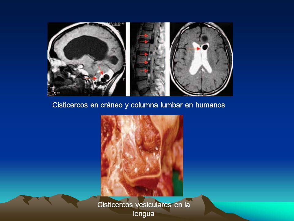 Cisticercos vesiculares en la lengua Cisticercos en cráneo y columna lumbar en humanos