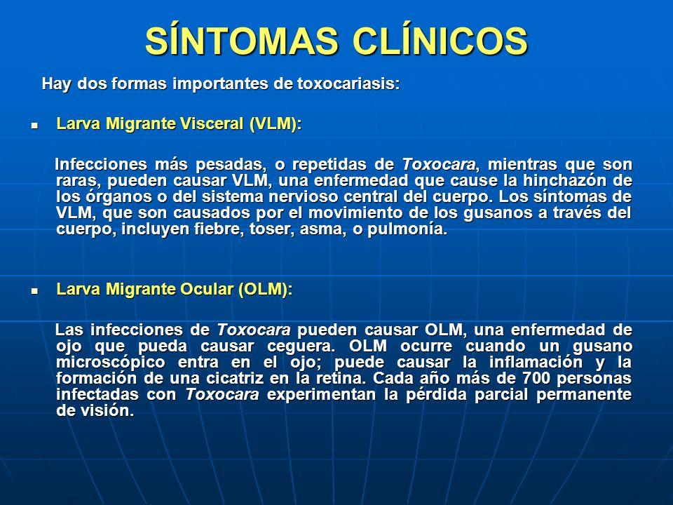 SÍNTOMAS CLÍNICOS Hay dos formas importantes de toxocariasis: Hay dos formas importantes de toxocariasis: Larva Migrante Visceral (VLM): Larva Migrant