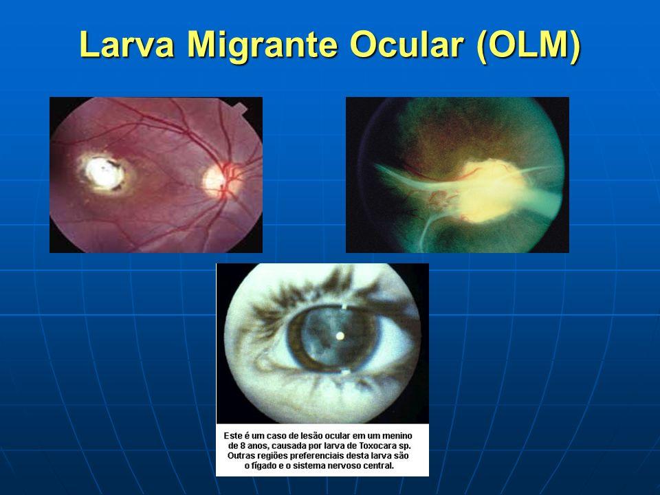 Larva Migrante Ocular (OLM)
