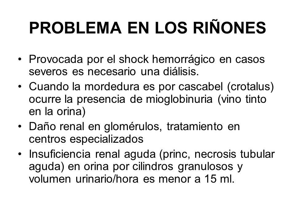 PROBLEMA EN LOS RIÑONES Provocada por el shock hemorrágico en casos severos es necesario una diálisis. Cuando la mordedura es por cascabel (crotalus)