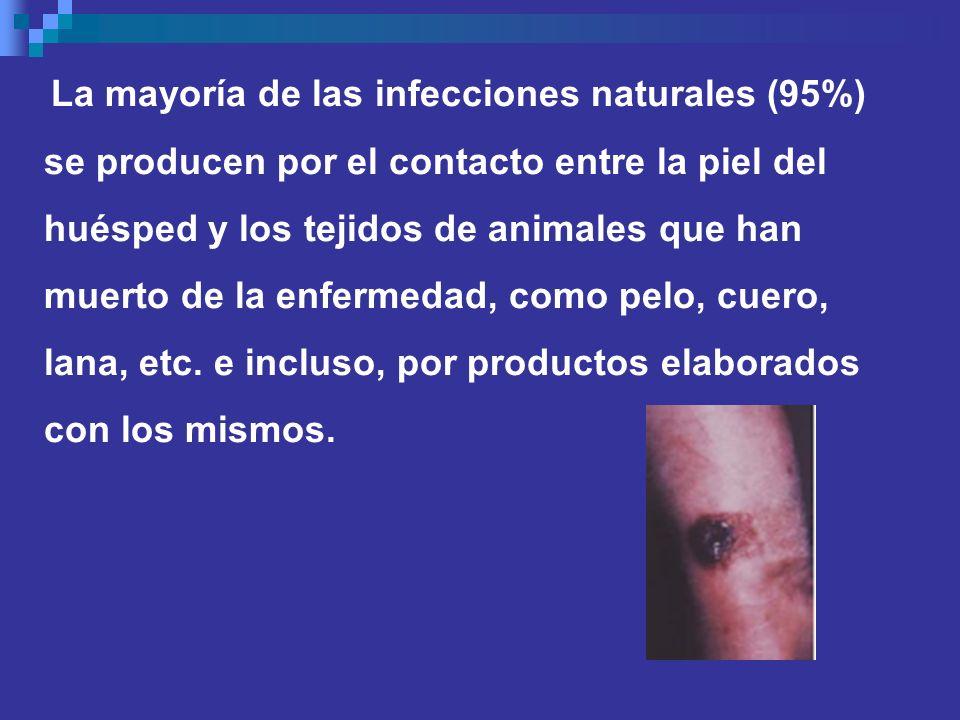 La mayoría de las infecciones naturales (95%) se producen por el contacto entre la piel del huésped y los tejidos de animales que han muerto de la enf