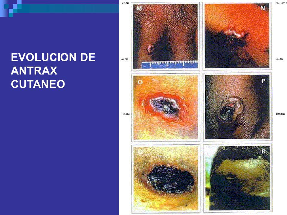 EVOLUCION DE ANTRAX CUTANEO