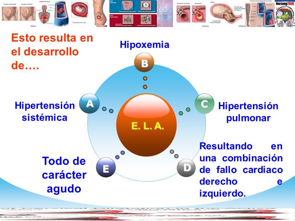 www.themegallery.com Company Logo Cycle Diagram E. L. A. A Hipertensión sistémica B Hipoxemia Esto resulta en el desarrollo de…. C Hipertensión pulmon