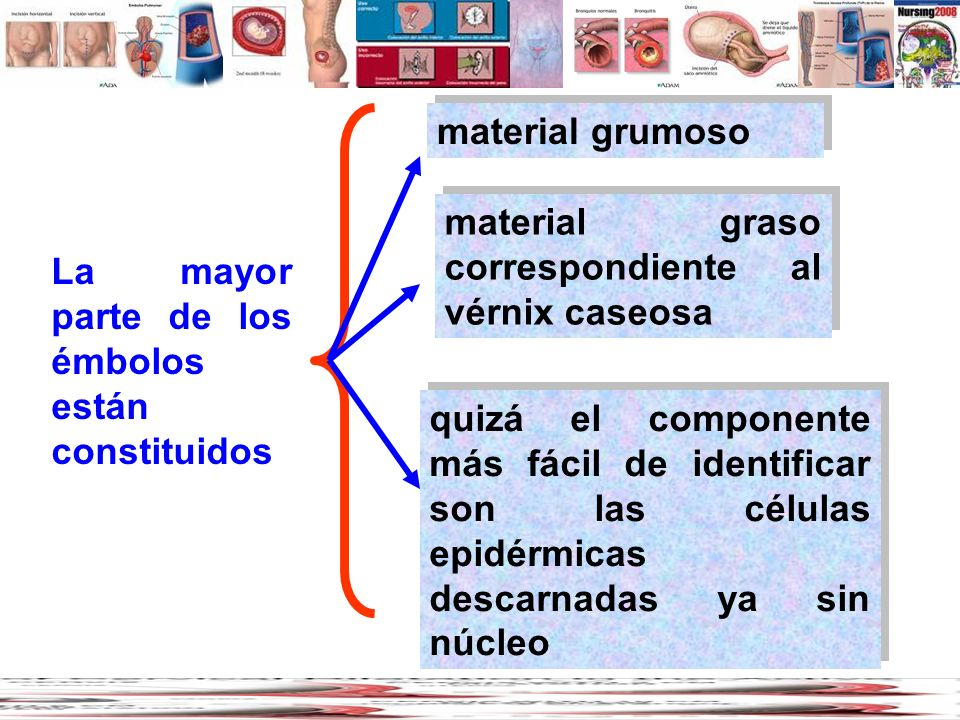 La mayor parte de los émbolos están constituidos quizá el componente más fácil de identificar son las células epidérmicas descarnadas ya sin núcleo ma