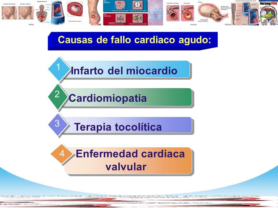 www.themegallery.com Company Logo Contents Infarto del miocardio 1 Cardiomiopatia 2 Terapia tocolítica 3 Enfermedad cardiaca valvular 4 Causas de fall