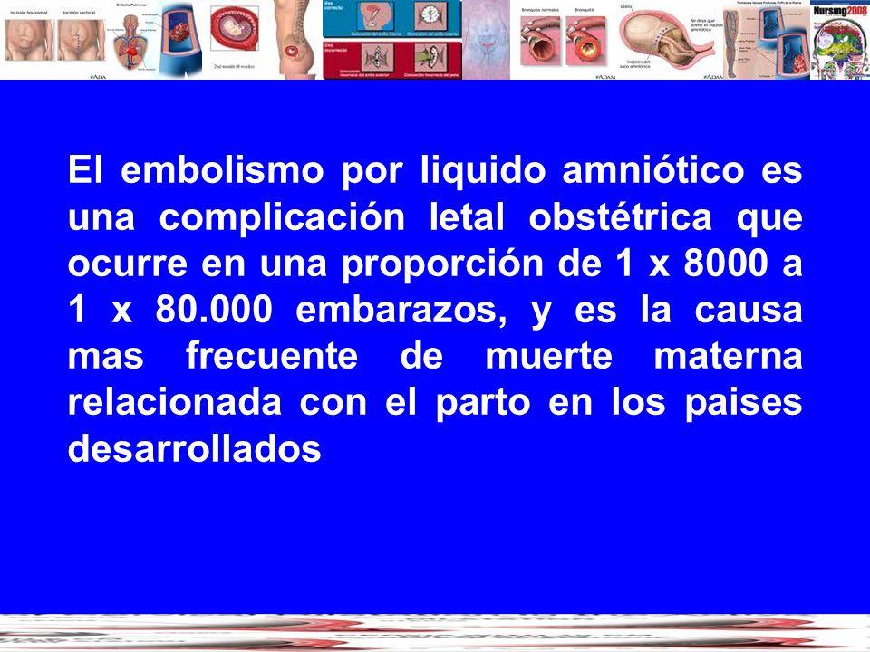 El embolismo por liquido amniótico es una complicación letal obstétrica que ocurre en una proporción de 1 x 8000 a 1 x 80.000 embarazos, y es la causa