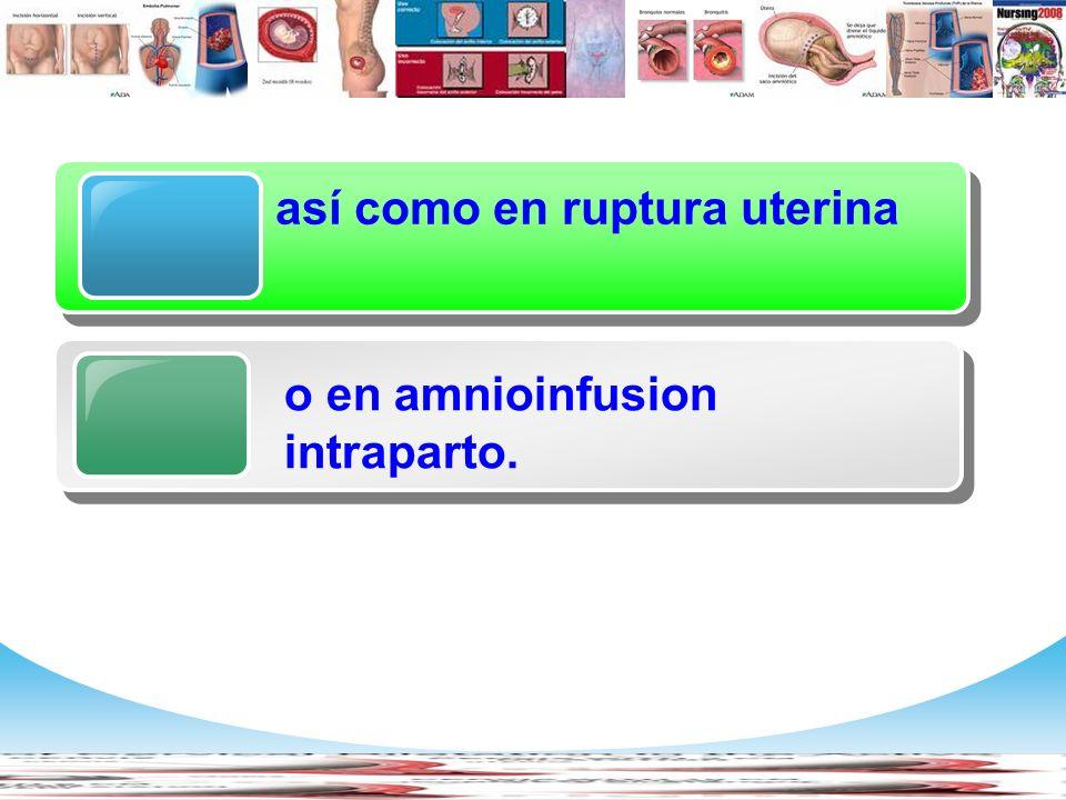 www.themegallery.com Company Logo Diagram así como en ruptura uterina o en amnioinfusion intraparto.