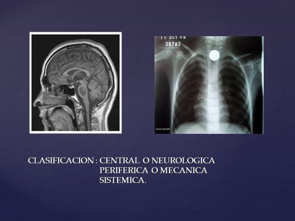 CLASIFICACION : CENTRAL O NEUROLOGICA PERIFERICA O MECANICA SISTEMICA.